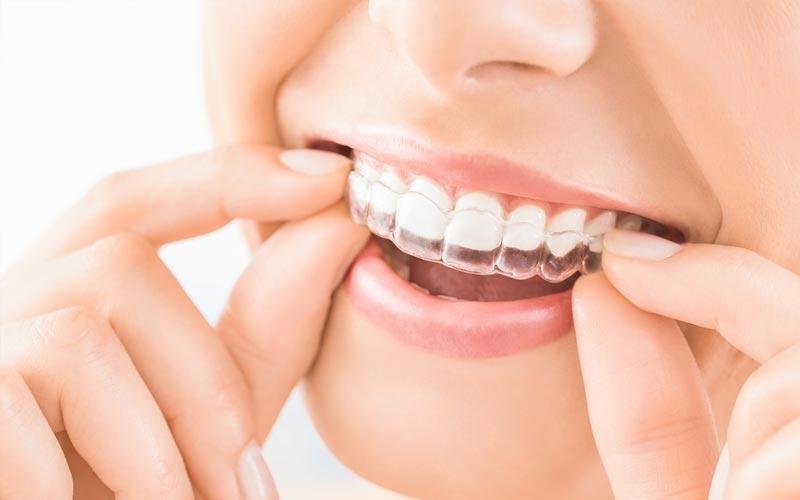 keraamiset paikat ja esteettinen hammashoito