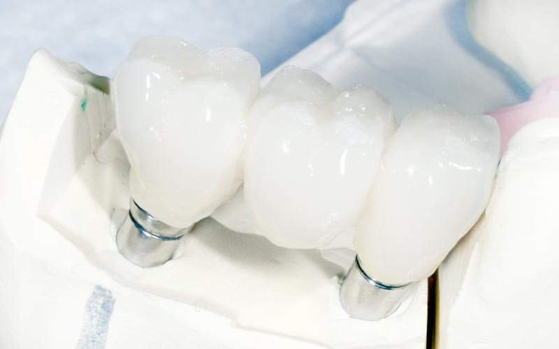 keinojuuret ja suukirurgia